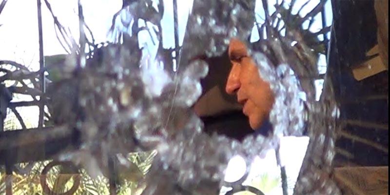 Photo of Por aquí penetró la bala que pudo acabar con la vida de Triffolio