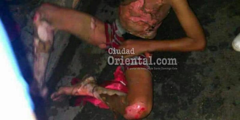 Photo of Dos mujeres queman vivo en Los Mina a un adolescente sin techo por el robo de un celular