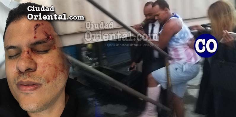 Photo of Imponen prisión agresor de médico en trifulca Hospital Darío Contreras