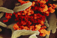 Photo of Científicos australianos han descubierto que un antiparasitario mata in vitro en 48 horas al nuevo coronavirus