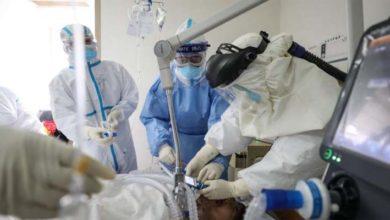 Photo of Descubren donde se concentra el nuevo coronavirus durante los primeros días de contagio